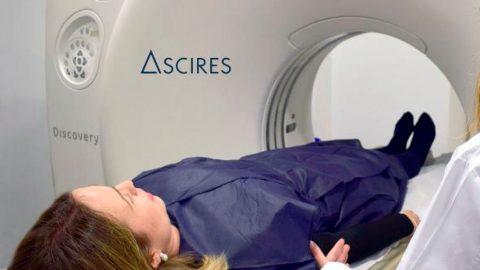 ASCIRES colabora con el hospital público 12 de Octubre en un ensayo clínico para combatir el cáncer de pulmón
