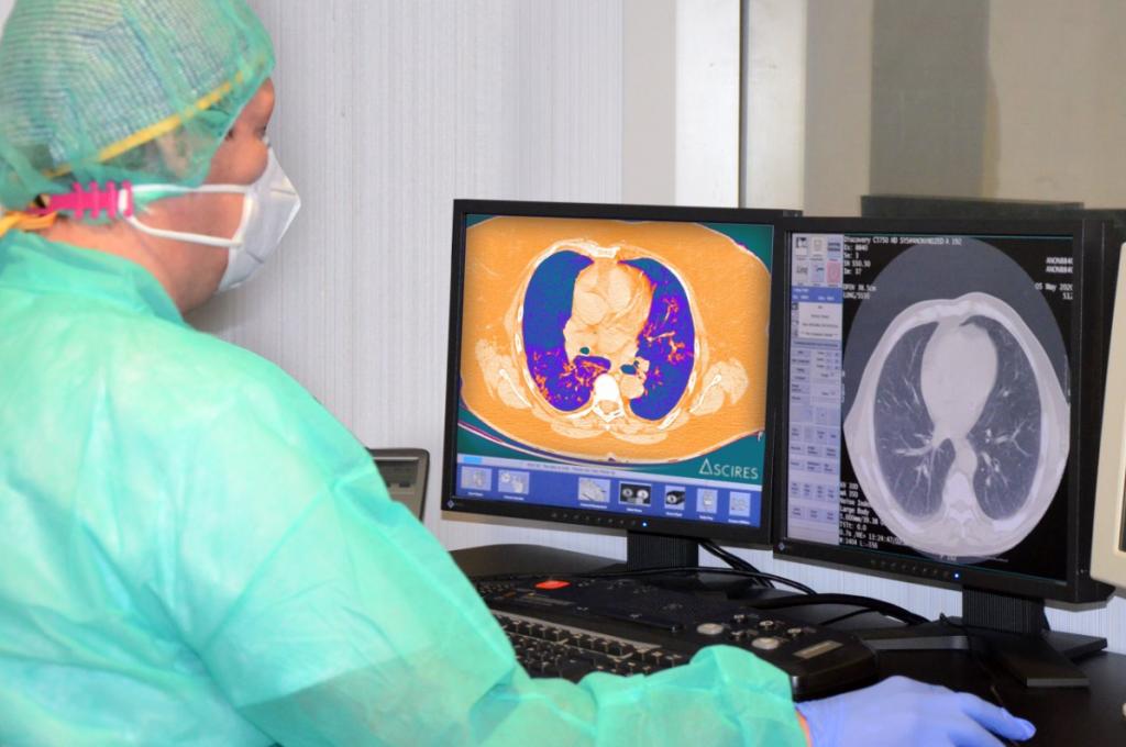 """""""Especialista procesando imagen de pulmón de un paciente COVID-19""""."""