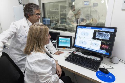 Precisión diagnóstica para evitar la impotencia y la incontinencia, secuelas de la cirugía radical de próstata